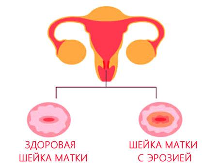 Что такое ерозия шейки матки и как ее лечить