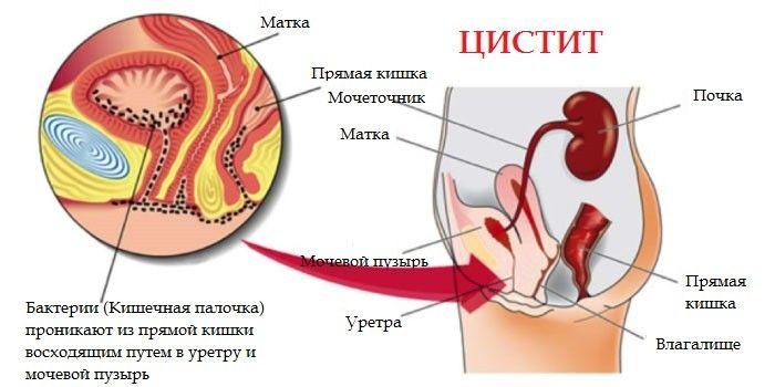 Цистит у женщин как лечить домашних условиях