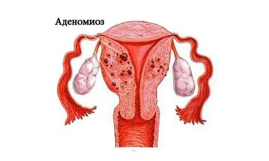 Аденомиоз с миомой лечение