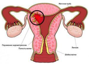 очаг эндометриоза в матке