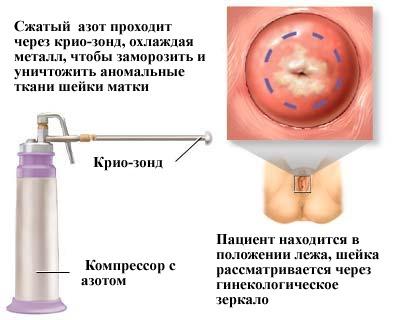 Клиника лечения псориаза отзывы