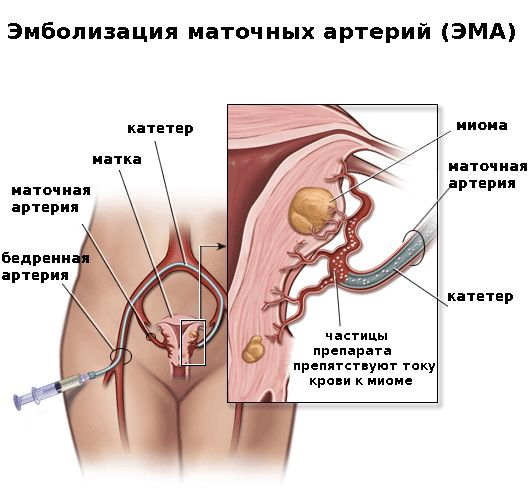 Виды оперативного лечения миомы матки
