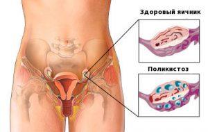 как забеременить при поликистозе яичников