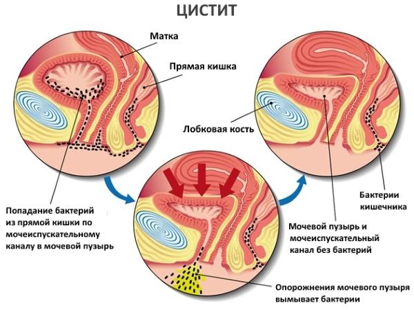 Острый цистит: симптомы и лечение у женщин. Как снять боль