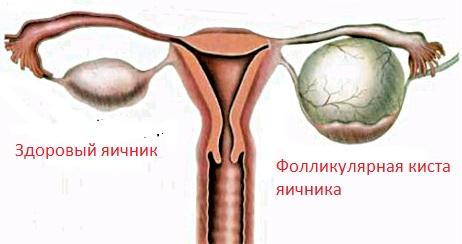 Фолликулярная киста правого яичника можно ли забеременеть