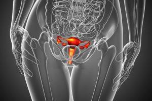 Цистит при кисте яичника  Лечение потнеции
