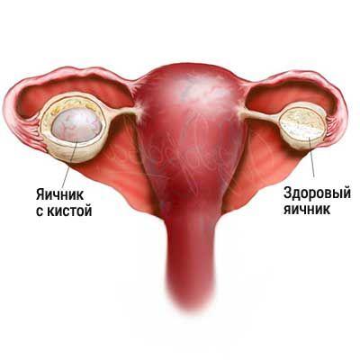 Эндометриоидная киста яичника причины симптомы лечение отзывы