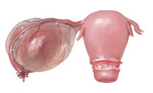 параовариальная киста яичника