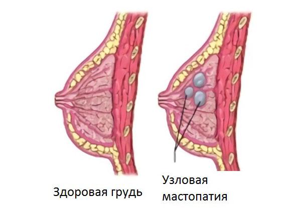 мастопатия узловая