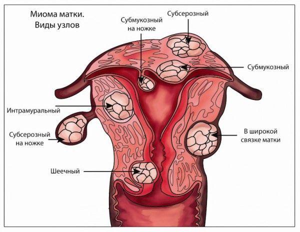 узловая миома матки