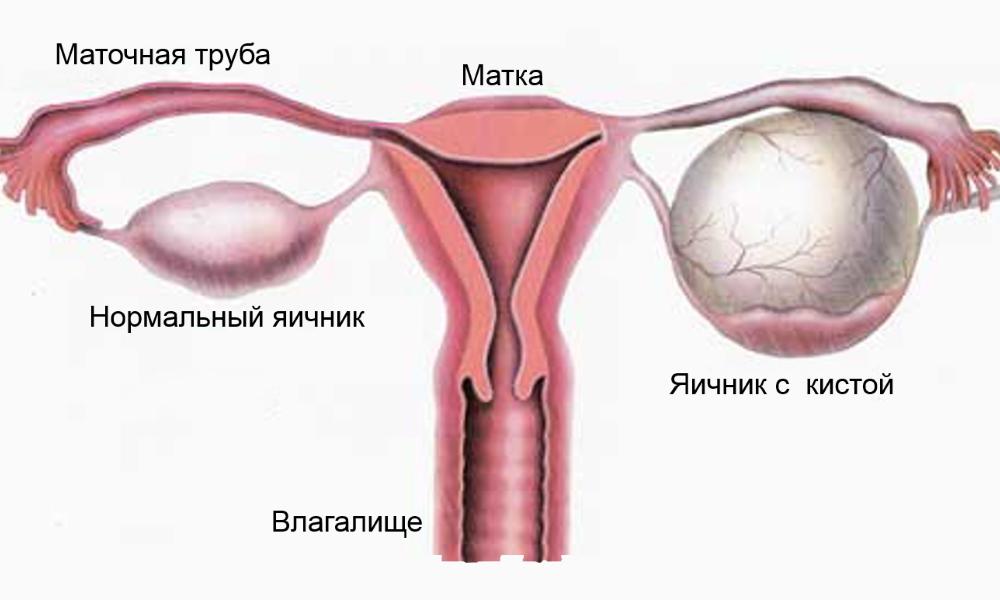 Киста на правом яичнике что делать