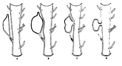 Парауретральная киста